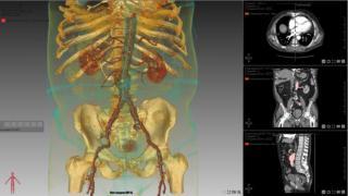 Экспертная система для работы с изображениями лучевой диагностики «БИОНИ Эксперт